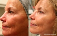 Liquid facelift using only Radiesse Filler
