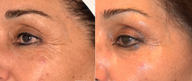 Ultherapy skin tightening of the upper face