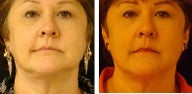 Venus Freeze Skin Tightening for Face & Neck