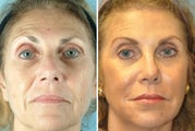 65 Year Old Women Treated for Unwanted Facial Lines