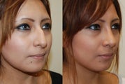 Rhinoplasty Surgery. 5 weeks post-op