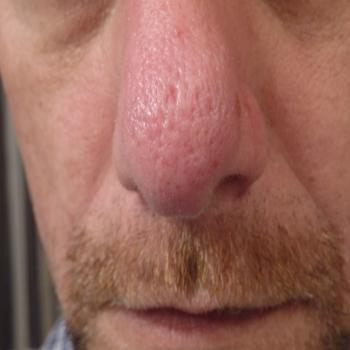 large pores on nose - photo #36