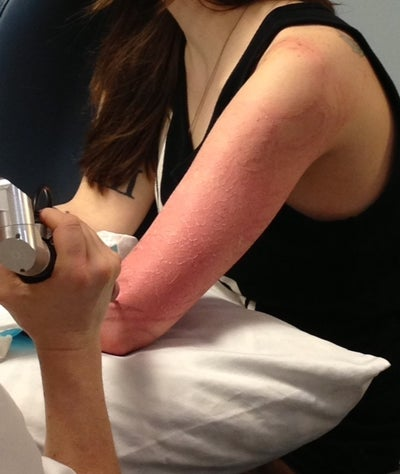 Full arm light lines tattoo boston ma picosure for How much is picosure tattoo removal