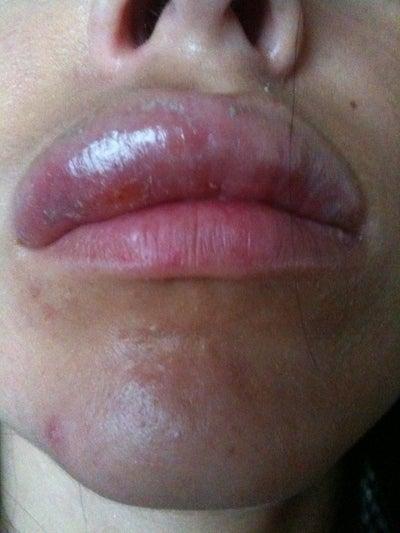 Lip swelling and Lip symptoms - Symptom Checker - check ...