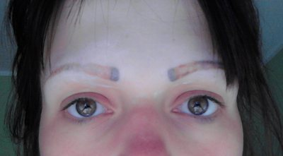 Having Problems With Permanent Make Up Eyebrows Laser