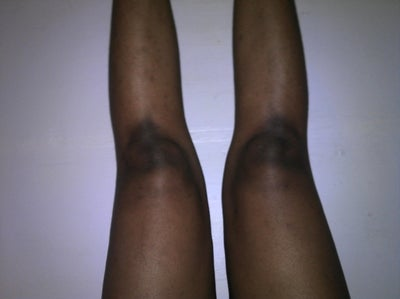 http://www.realself.com/question/i-dark-spots-and-discolouration-my