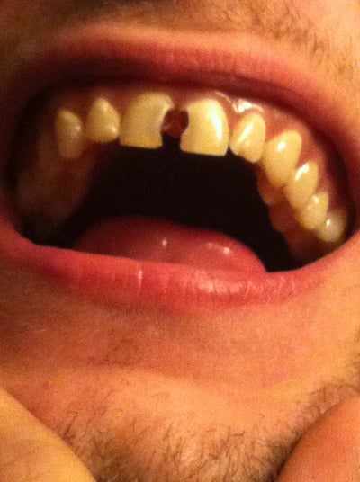 Is a Root Canal and Crown Still Possible for my Front ...