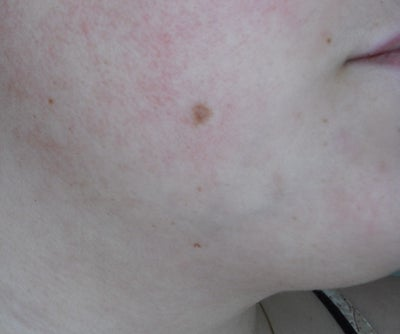Skin of different types moles on