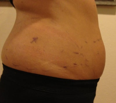 how to become a coolsculpting tech