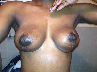 c36 breasts