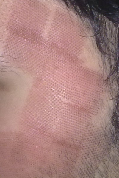 Fraxel Restore - No Results, Worried About Scarring - Fraxel Laser ... You Better Have Burn Heal