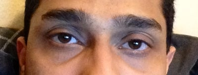 I Am from Indian Descent and Have Severe Dark Circles and ...