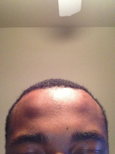 how to clear forehead bumps
