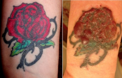 Wrist Tattoo Cover Ups Before And After Images & Pictures - Becuo
