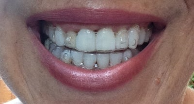 I Am On Trays 28/28 Of My Invisalign Treatment And My ...