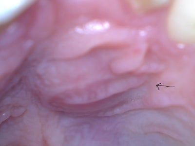 Swollen Bump On Roof Of Mouth 36