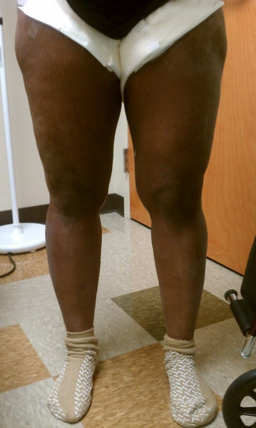 Thigh Lift Pleased Thus Far Atlanta Ga Thigh Lift