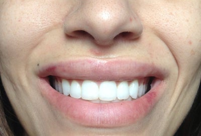 Swollen Lips After Surgiderm -(photo)
