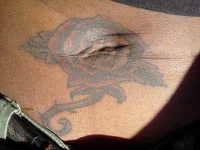 colored tattoo be successfully removed from dark African American skin ...