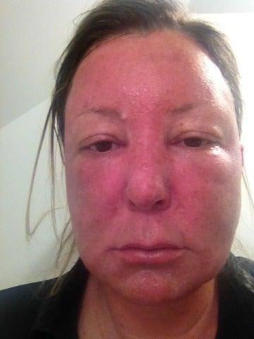 Aesthetic Skin Care Center Virginia Beach