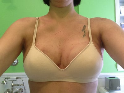 BRAVA, Scarless Lift of Left Breast and AFT.