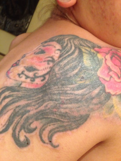 Picosure laser on tattoo cover up miami fl picosure for Picosure tattoo removal maryland