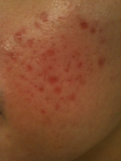 Red Marks Post-TCA Cross for Acne Scars Doctor Answers, Tips