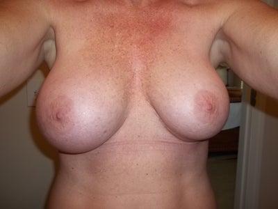 Deflated saline breast congratulate