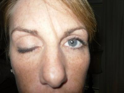 Eyelid Eczema Treatment And Prevention | 14 Days Eczema Cure