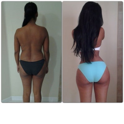 Brazilian Butt Lift Prices 80