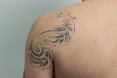 Picosure laser tattoo removal 4 weeks after one treatment for Picosure tattoo removal maryland