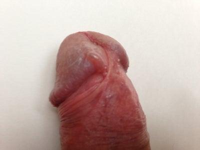 penis single bump on