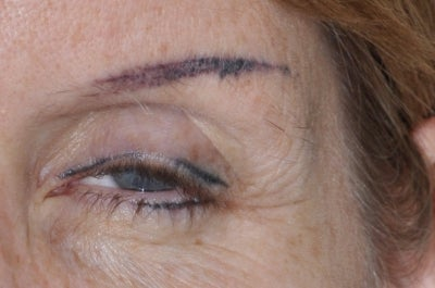 Eyebrow nightmare dallas tx permanent makeup review for Tattooed eyebrows gone wrong