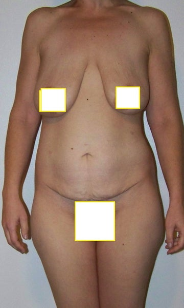 Breast Lift Without Implants 76