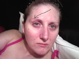 scar removal answers eyebrows