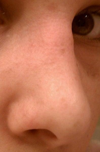 Bumps On My Nose