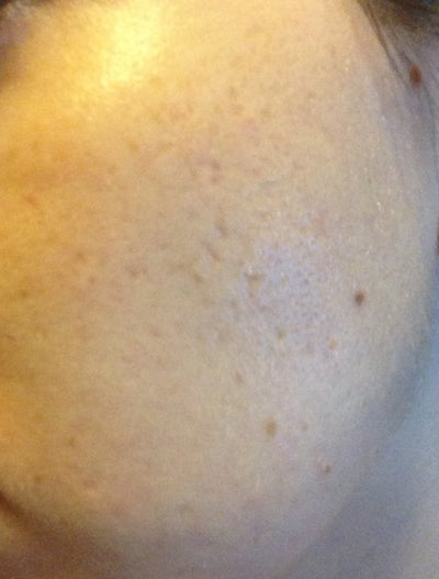 how to get rid of acne scars and pigmentation