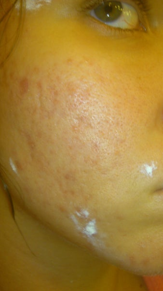 How Severe Are my Acne Scars? (photo) Doctor Answers, Tips