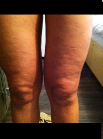 Laser Lipo 6 Months Ago Now I Have Bumpy Skin Around My