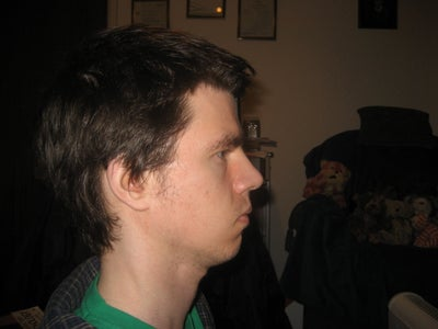Do I Have Long Face Syndrome? Is there anything I can do ...
