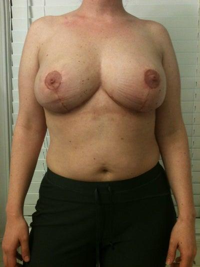 Breast Augmentation in Louisville, KY