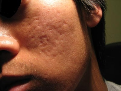 Best acne treatments for guys