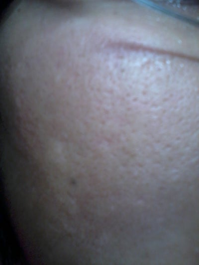 Acne Dark spots and pitted scars remedy (Photo) Doctor
