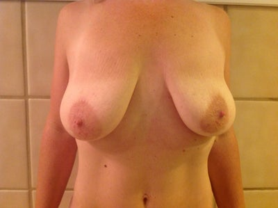 Plastic Surgeon Lexington, Plastic Surgery, Breast