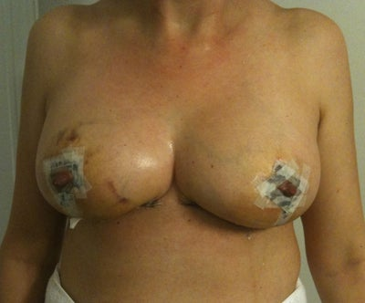 Shoulders down cost of breast reduction in canada what shall