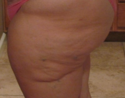 Lumpy,Bumpy,Inner/Outer Thighs with Dents. How to Correct? (photo
