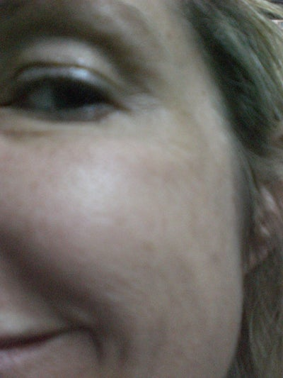 Half Moon Under Eye? (photo) Doctor Answers, Tips