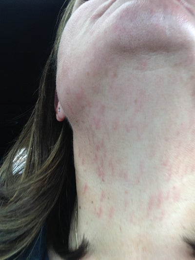 Waxing Neck Hair: Had Laser Done On Face/neck For Hair Removal. My Face Has