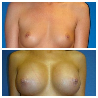Best Breast Enlargement Cream Reviews - The Bust Boosters
