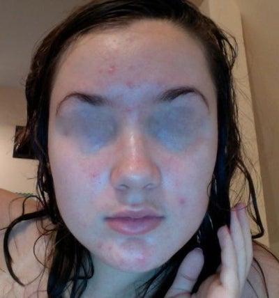 innisfree masque anti points noirs et pores dilatés traitement